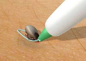 Zeckenschlinge Zwergpinscher - Zecken entfernen